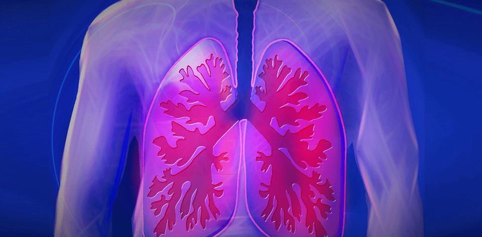 Przewlekła obturacyjna choroba płuc (POChP)