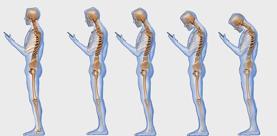 wpływ smartfona na kręgosłup