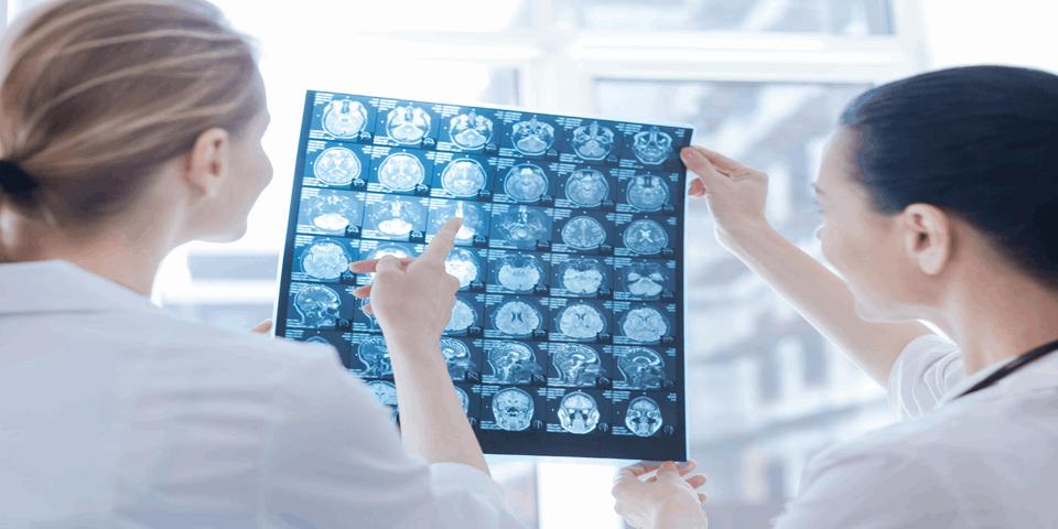 Lekarze oglądający zdjęcie z rezonansu magnetycznego