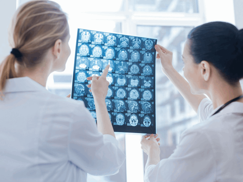 konsultacja neurologiczna BetaMed